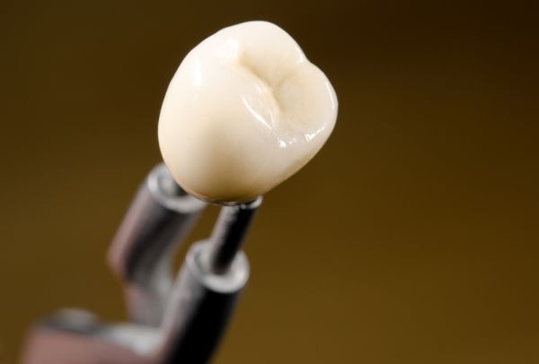 How To Take Care Of Crowns After Crown Placement On Implants